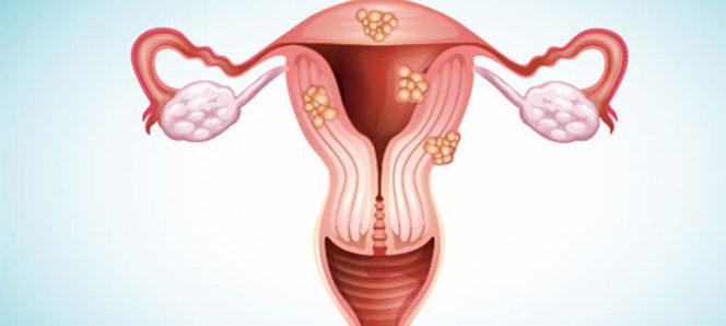 Los fibromas uterinos