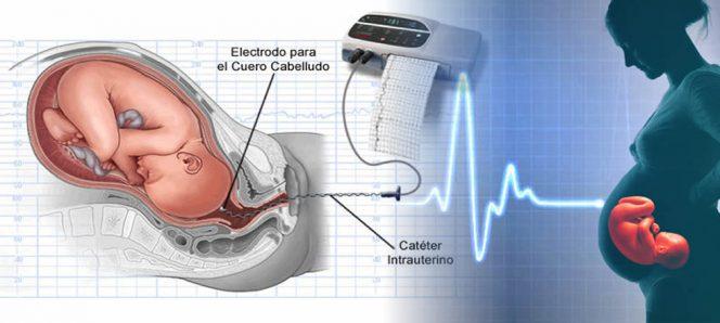 Monitorización de la frecuencia cardíaca