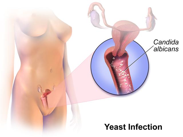 Infección vaginal